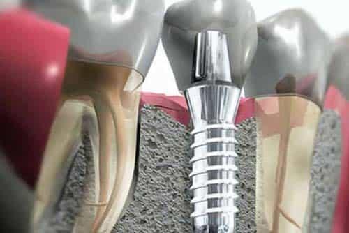 implante-dentario-min-min-min-min